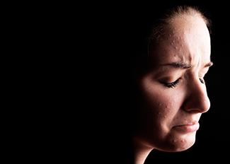 Acne hormonal – Quando suspeitar?